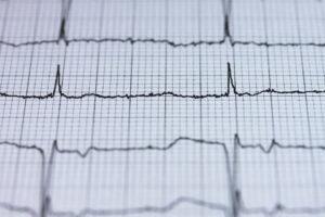 Fetal Bradycardia Birth Injuries