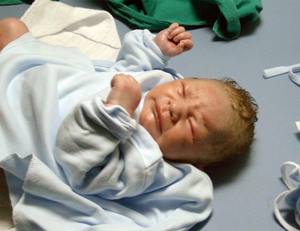 Newborn Bone Fractures